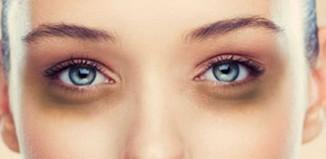 eye-dark