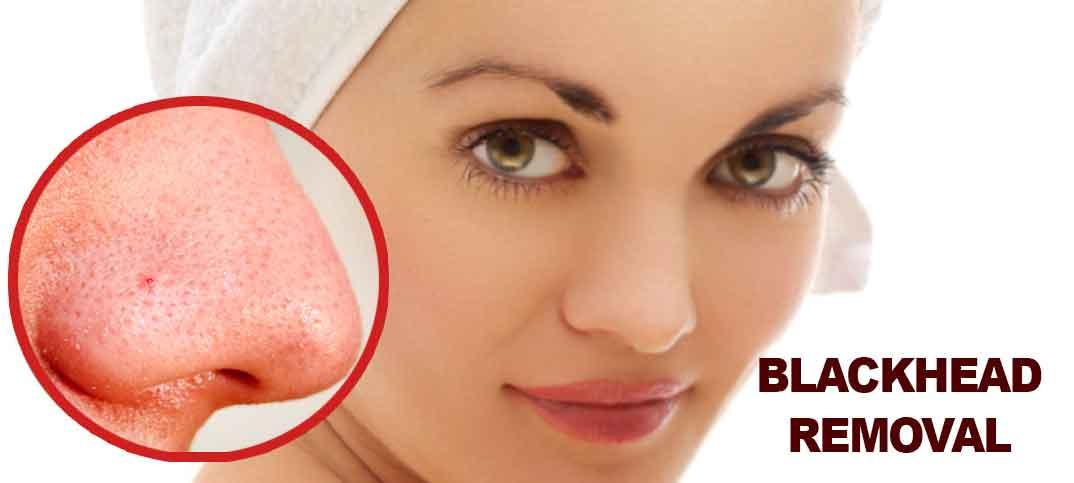 blackhead-remover